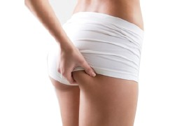 How to Fight Cellulite